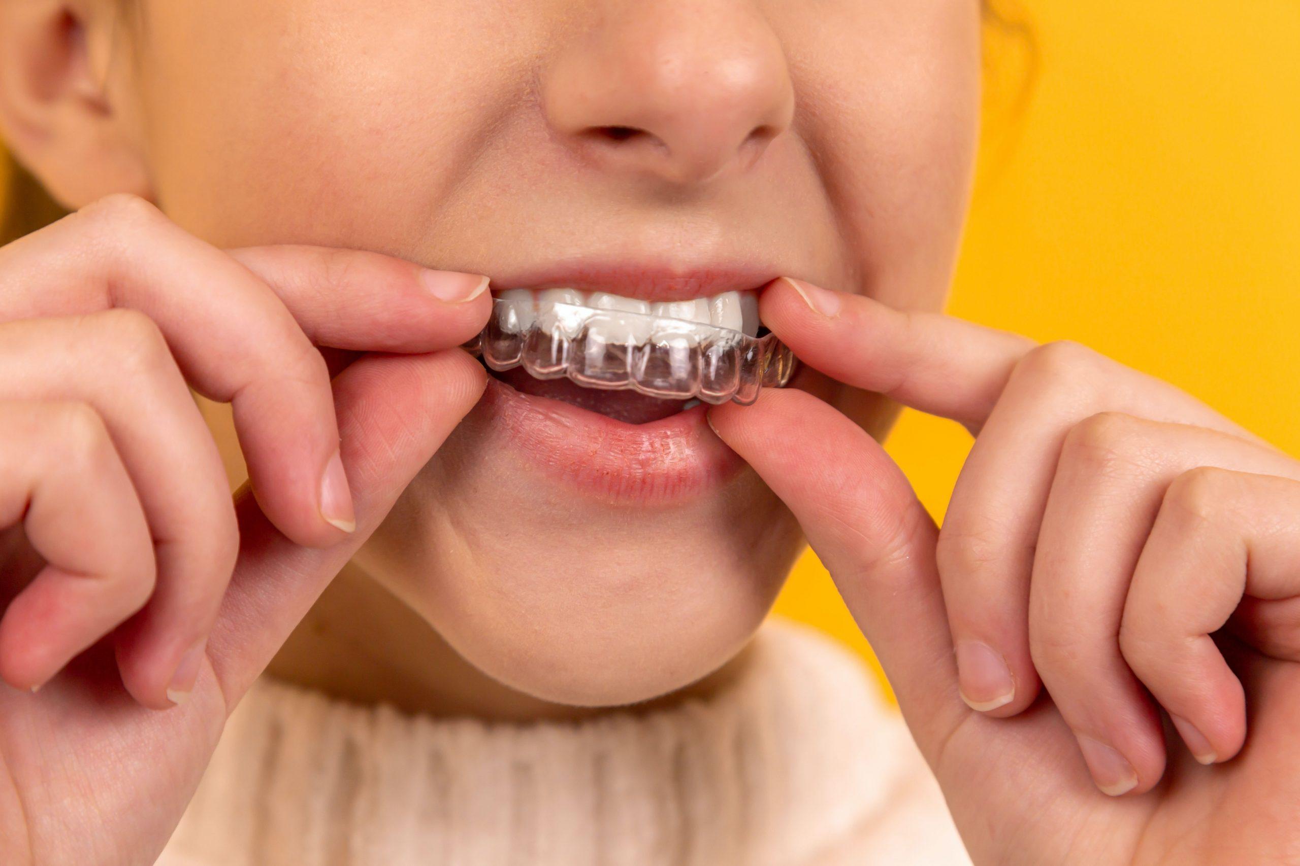 Appareil dentaire enfants
