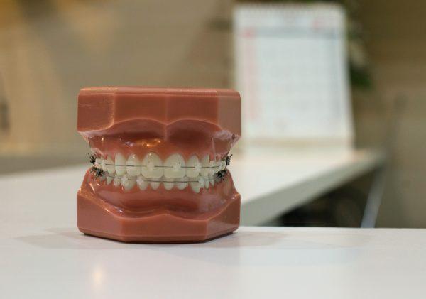 Quels sont les différents types d'appareil dentaire pour les enfants ?